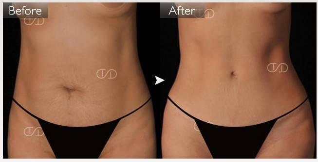 4Dスカルプト 女性 症例画像 ベイザー脂肪吸引 筋肉