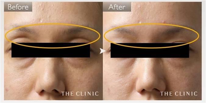 目の上 くぼみ 脂肪注入 症例画像