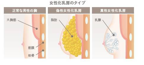 女性化乳房の種類