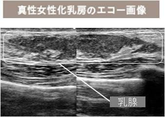 女性化乳房のエコー写真