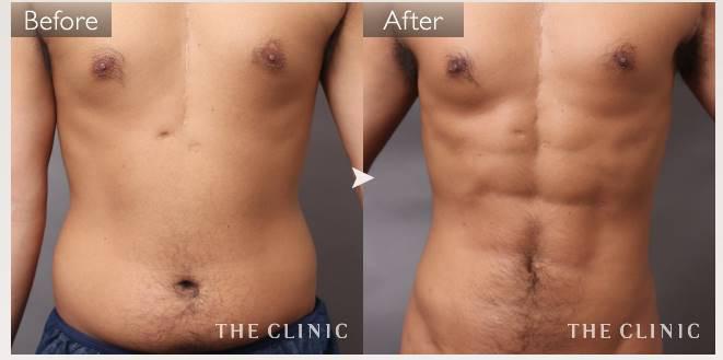 4Dスカルプト 男性 症例画像 ベイザー脂肪吸引 筋肉 ボディデザイン