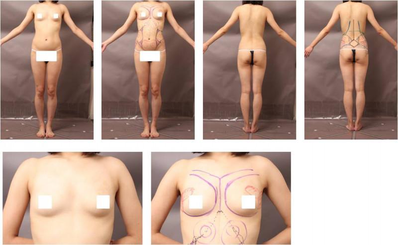 コンデンスリッチ豊胸 ベイザー脂肪吸引 デザイン 症例 画像