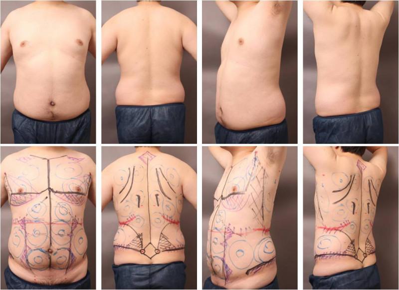 ベイザー脂肪吸引 大柄ゲスト 画像