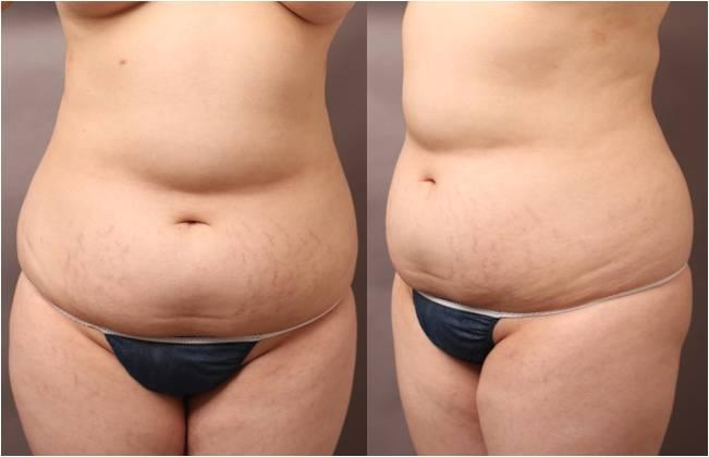 脂肪 吸引 ブログ 二の腕