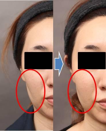 症例写真:頬のくぼみ修正