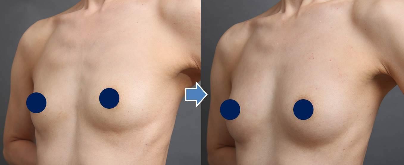 痩せ型/授乳後の脂肪注入豊胸(ザクリニック 福岡)