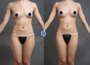 脂肪注入豊胸の症例(全身)