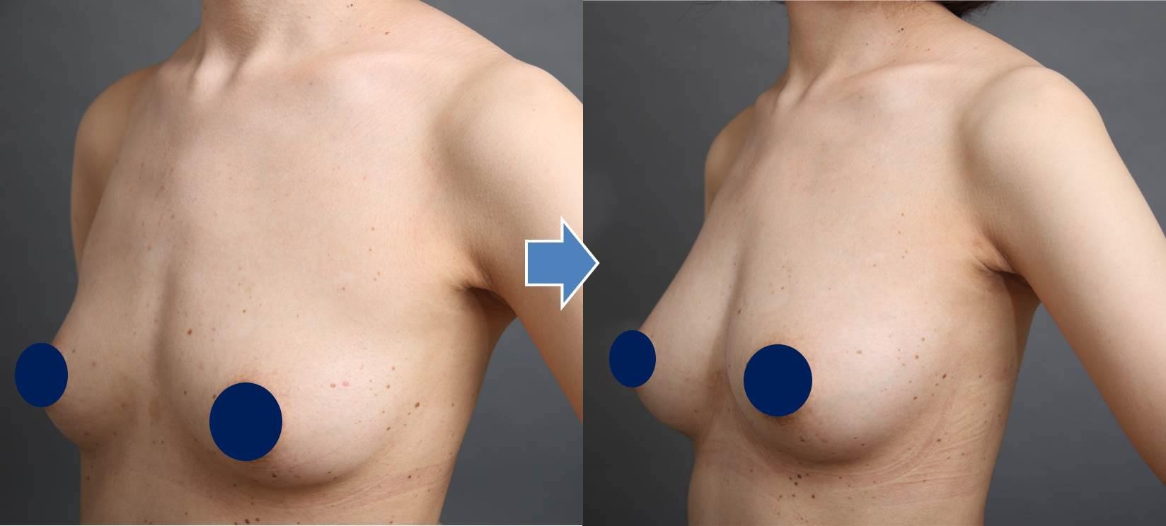 脂肪注入豊胸の症例(釣鐘型)